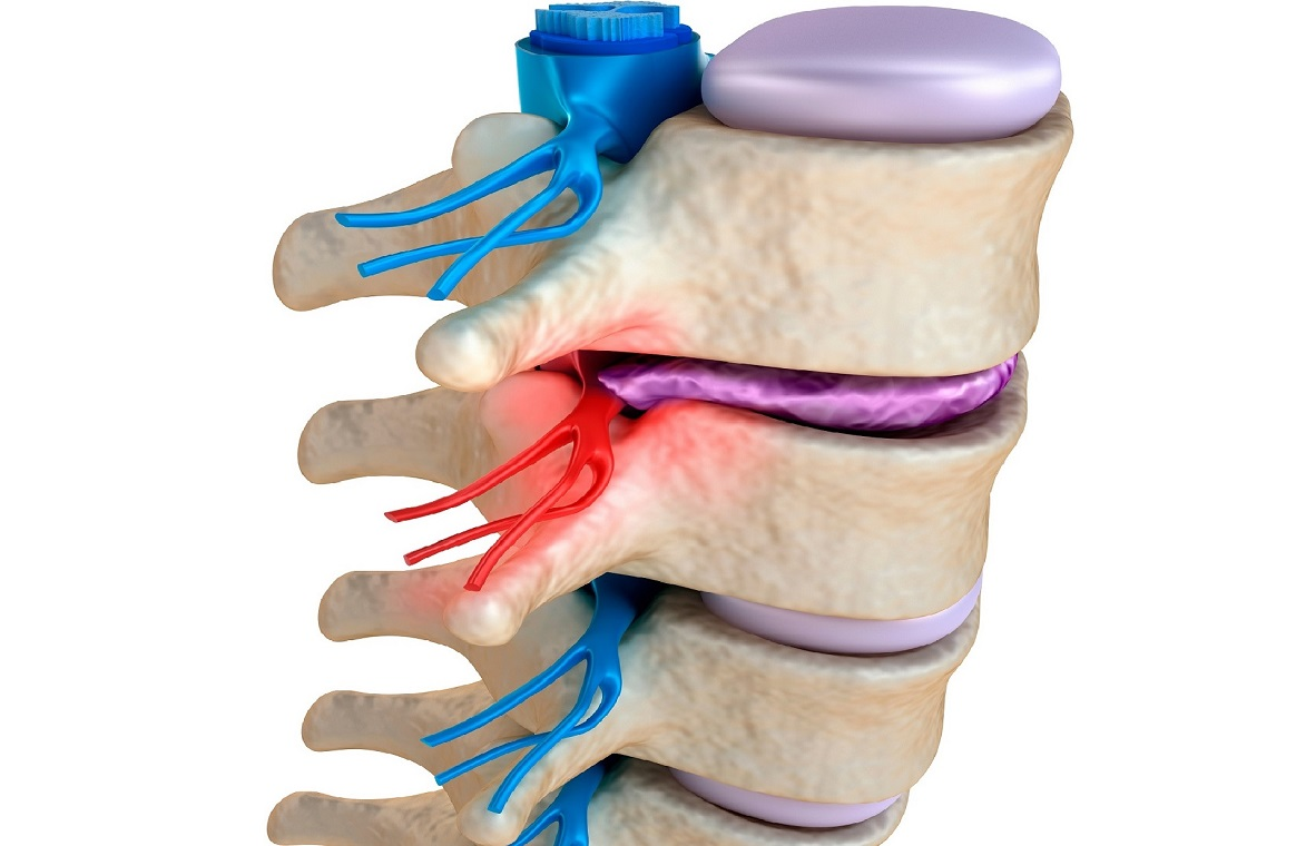 Successful help with disc injury, sciatica, spinal stenosis, degenerative arthritiis, hip problems etc. need specialist techniques and management. Provided at Mendip Chiropractic, Shepton Mallet, Somerset between Wells and Frome